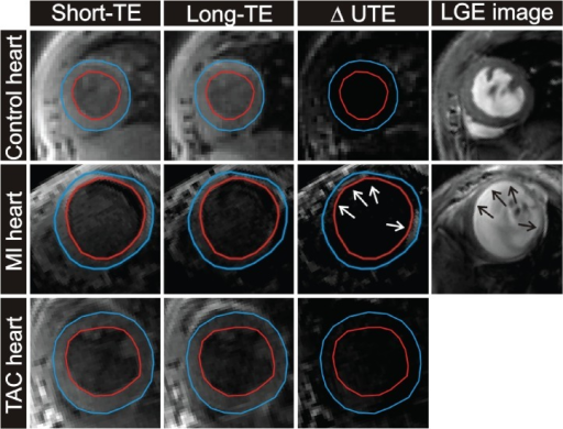 In vivo T2*-weighted images in control heart, a MI heart and a TAC heart.Examples of a short-axis cross-section of a control heart (top row), a MI heart (middle row) and a TAC heart (bottom row) obtained with the T2*-weighted 3D sequence (short-TE, long-TE and ΔUTE image). LGE scans were obtained in control and post-MI mice (right column). The arrows indicate the infarcted areas.