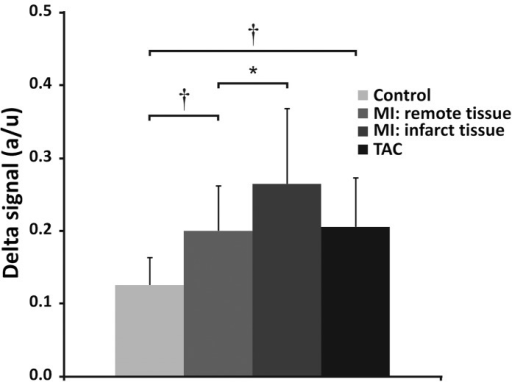 In vivo signal difference between long and short-TE.In vivo signal difference between long and short-TE, in control, post-MI and TAC mouse hearts. The signal difference between the short-TE (21 μs) and long-TE images (1.429 ms) is larger for remote and infarct tissue in post-MI hearts, and in TAC hearts, compared to control hearts. * (P<0.05) and † (P<0.01). Error bars indicate SD.
