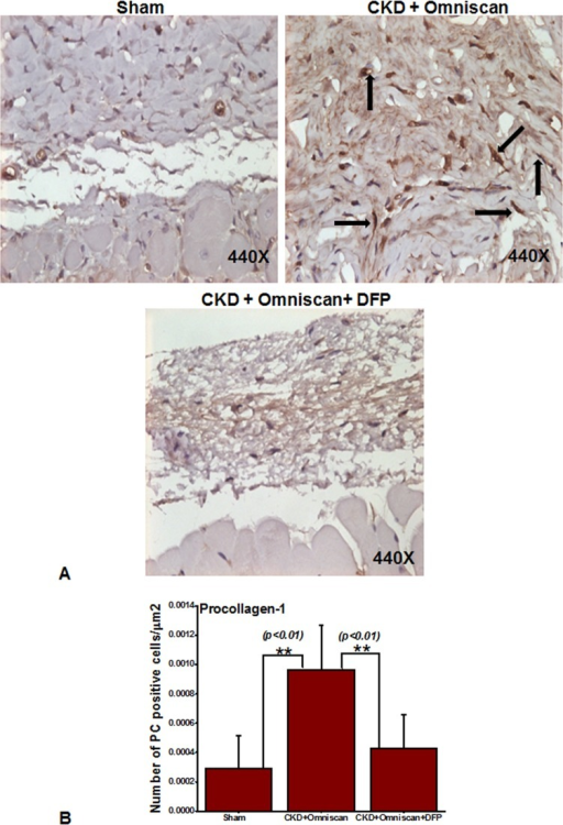 Deferiprone down-regulates Omniscan-induced procollagen-1+ cells in NSF skin as shown by immunohistochemistry.As indicated by arrows, Omniscan induced procollagen-1+ cells and accumulation of collagen bundles in the skin of CKD mice. Quantitative analysis of the number of positively stained cells is in μm2. (**p<0.01 Omniscan alone compared with control or Omniscan-treated compared with deferiprone and Omniscan).