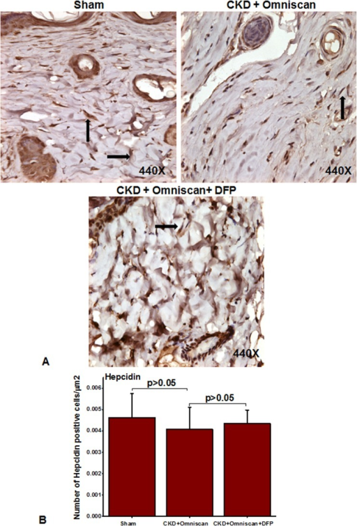 Expression of hepcidin in Omniscan-injected CKD mice.Hepcidin was slightly down-regulated after Omniscan treatment. Pretreatment with deferiprone partially increased hepcidin expression.
