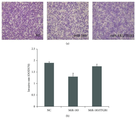 Overexpression of ITGB1 rescued the repressive effects of miR-183 on endometrial stromal cells, leading to elevated invasive abilities in transwell assays. Endometrial stromal cells were infected with miR-183-lentivirus, miR-183/ITGB1-lentivirus, and GFP-lentivirus in upper wells. After 24 hours, the number of cells that invaded through Matrigel was counted in at least 10 fields per well. (a) Representative photographs show that miR-183 inhibited the invasiveness of endometrial stromal cells, whereas ITGB1 partially rescued the repressive effects of miR-183. (b) Cell counting results indicate that ITGB1 overexpression rescued the repressive effects of miR-183. ∗P < 0.05 when compared to the negative control. Error bars represent ± SEM.
