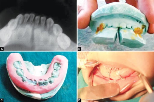 (A) Preoperative radiograph, (B) fabrication of MacLennan splint, (C) fabricated MacLennan splint, (D) MacLennan splint with circummandibular wiring