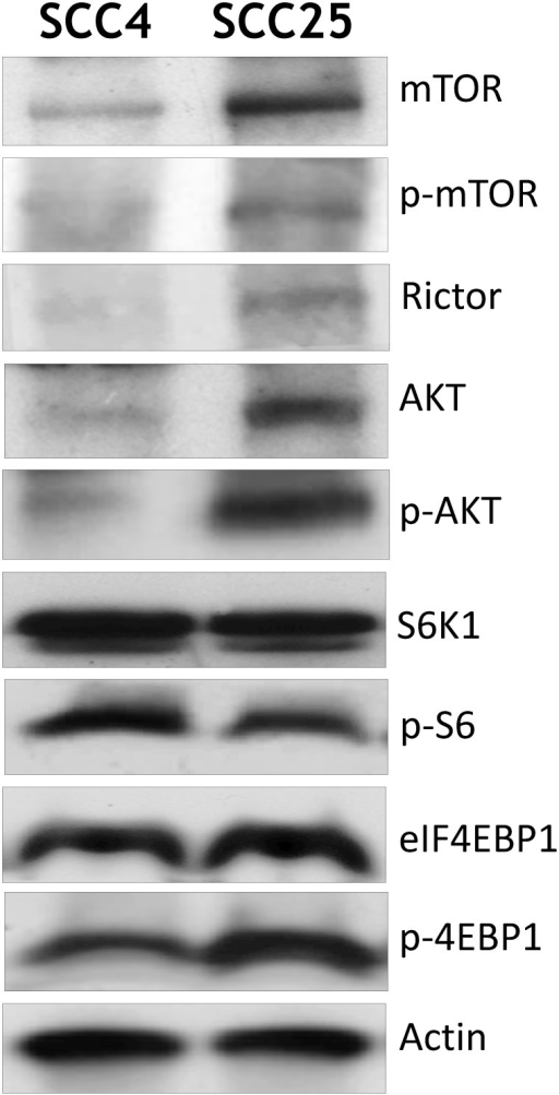 Expression of AKT and mTOR signaling pathway in OSCC cell lines.Cell lines were homogenized in lysate buffer as described in Materials and Methods. A 50 μM sample of protein was analyzed by Western blotting using specific antibodies against components of the AKT/mTOR pathway.