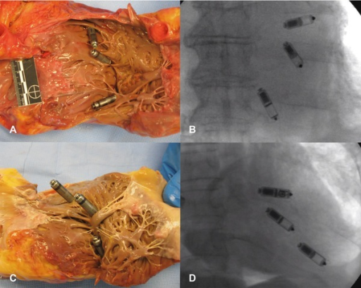 Multiple Micras implanted as shown in photographic and fluoroscopic images. An example of the largest heart is shown in A and B (specimen 10549); an example of smallest heart is shown in C and D (specimen 10550).