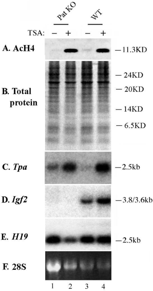Effects of histone deacetylase inhibitor on Igf2 knockout cells. Primary embryonic liver cells were derived from mice which carried a paternally-inherited deletion of Igf2 (Pat KO; lanes 1 and 2) or their wild-type littermates (WT; lanes 3 and 4). First passage cells were either treated with 500 nM TSA for 6 hr or left untreated as indicated. (A) Western analysis of protein derived from the cells using the anti-acetylated histone 4 (AcH4) antibody shows that treatment with TSA markedly increases the amount of acetylated histone in the primary cells (lanes 2 and 4). (B) Coomasie stained total protein loading control for the Western. (C) Northern hybridization of RNA derived from the same cells to a mouse probe for Tissue-type plasminogen activator (Tpa). Transcription levels can be seen to increase on TSA treatment (lanes 2 and 4) as in RD cells. (D) The membrane used in (C) was stripped and rehybridized with a probe for Igf2. Mice which carry a deletion of the gene on the paternally inherited allele (Pat KO) are missing the allele which is normally active but retain the silenced maternal allele and show no expression of the gene (lane 1). Reactivation of the silent maternal allele was not seen in the cells treated with TSA (lane 2). The two major transcripts ran as a single band here. (E) Rehybridization with an H19 probe shows no significant difference between the TSA treated and untreated samples, allowing for differences in loading. (F) 28S rRNA loading control for the Northern.