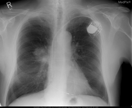 PA CXR shows a mass overlying the right hilum