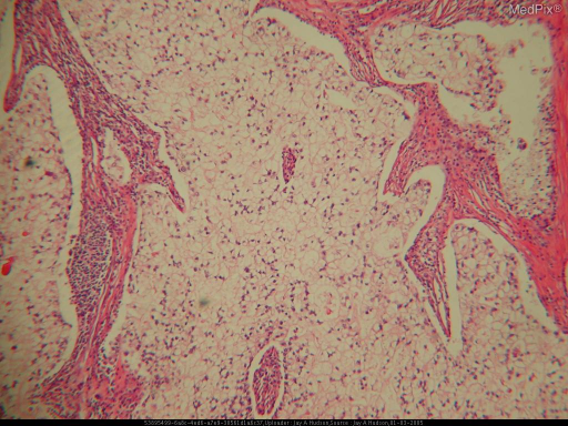 Low power histology slide demonstrates multiple clear cells