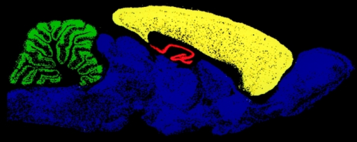 Four TARP isoforms (represented by different colors) are segregated in the brain.
