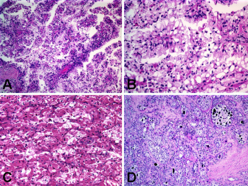 Histologic features of Xp11 translocation RCC with novel breakpoints, t(X;19)(p11.2;q13.1). A, Papillary pattern with admixed voluminous clear and eosinophilic cells. B, Papillary pattern with voluminous clear cells. C, Nested/alveolar pattern with voluminous eosinophilic/oncocytic cells. D, Occasional hyaline nodules and numerous psammoma bodies.