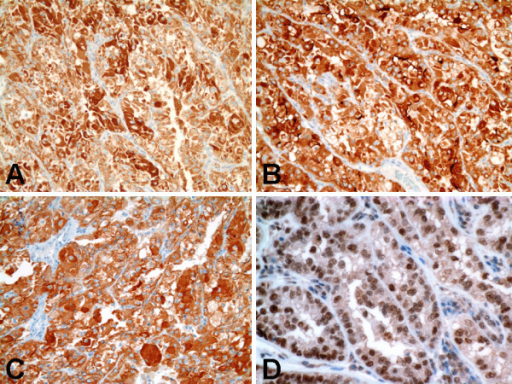Immunohistochemical findings of Xp11 translocation RCC with novel breakpoints, t(X;19)(p11.2;q13.1). A, Strongly positive cytoplasmic staining for epithelial membrane antigen. B, Strongly positive cytoplasmic staining for CD10. C, Strongly positive cytoplasmic staining for E-cadherin. D, Strong nuclear labeling for TFE3 protein.