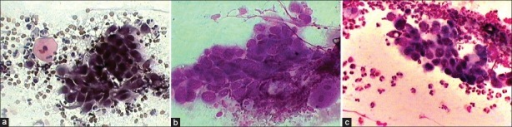 (a) Smear showing differential staining of cytoplasm (Pap, ×400); (b) Smear showing inadequate cellular details (MGG, ×400); (c) Smear showing clear cellular details with an enlarged nucleus and crisp, granular chromatin (LG cocktail, ×400)