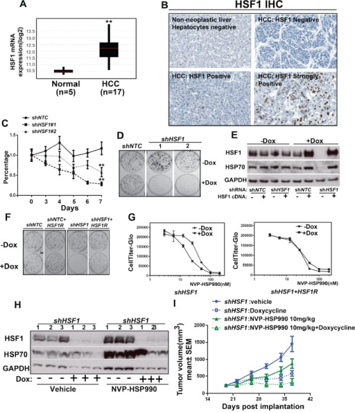 HSF1 knockdown sensitizes hepatocellular cancer cells to HSP90 inhibitor in vitro and in vivoA. The mRNA level of HSF1 was measured among tumor samples from HCC patients compared to normal control. B. IHC showed the expression of HSF1 in primary human hepatocellular cancer. C. The cell growth curve of Hep3B cell with or without HSF1 knockdown at different time points. shNTC or shHSF1 transduced Hep3B cells were treated with or without Doxycycline for 7 days. Relative cell growth (average of at least 3 independent experiments) was measured by CellTiter-Glo and normalized to cells without Doxycycline treatment. D. Cell colony formation assay of HSF1 knockdown in Hep3B cells. shNTC or shHSF1 transduced Hep3B cells were treated with Doxycycline for 12 days. E. Western blotting analysis of Hep3B cells expressing the indicated shRNA and cDNA contruct. The inducible lenti-virus construct (HSF1R cDNA) was used to transduce Hep3B cells and expression of HSF1R cDNA with or without HSF1 knockdown were tested. HSF1, HSP70 and GAPDH were detected by western blotting. F. Cell colony formation assay of over-expression of HSF1R cDNA in Hep3B cells with or without HSF1 knockdown. G. The comparison of dose response of NVP-HSP990 in Hep3B cells with inducible expression of either HSF1 shRNA alone or both HSF1 shRNA and HSF1R cDNA. HSF1 shRNA alone or both HSF1 shRNA and HSF1R cDNA transduced cancer cells were treated with or without Doxycycline for 3 days, then followed by being treated for 5 days with serial dilutions of NVP-HSP990. H. Western blotting analysis of tumor samples. Tumor samples were collected at the end of studies and western blotting analysis of HSF1, HSP70 and GAPDH were performed. I. The combinational effect of HSF1 knockdown and HSP90 inhibitor in Hep3B xenograft mouse model. Tumor growth rate of Hep3B cells expressing inducible control shRNA or shRNA against HSF1 under Doxycycline and/or NVP-HSP990 were compared at different time points.