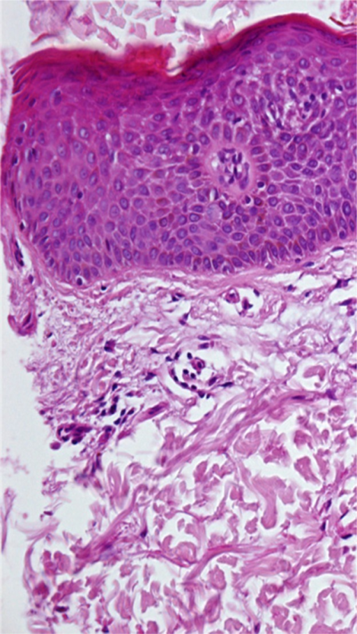 Parakeratosis Acanthosis Spongiosis And A Few Lymphocytes Scattered In The Dermis
