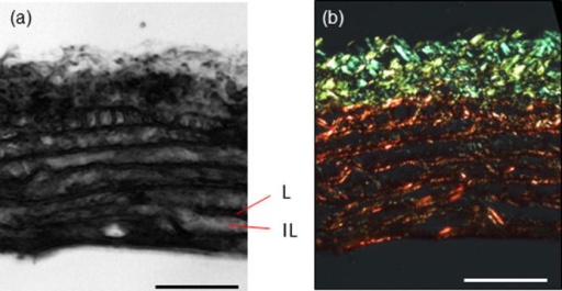 (a) SAM images of rat aorta (200 × 200 μm) prior to any fixation or staining. Lamellar (L) and inter-lamellar (IL) regions of the aorta are highlighted. (b) The same section as shown in (a) following polarized light microscopy of Picro-sirius red (PSR) stained and hence birefringent collagen fibres. Scale bar 50 μm.