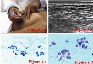 FNA Test and Samples, Figure1 a. Biopsy, Figure 1 b By Ultrasound, Figure1 c. Benign Sample, Figure1 d. Malignant Sample