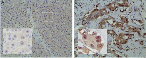 Immunohistochemical staining of lactate dehydrogenase-5 (LDH-A) in (A) para-carcinoma tissue and (B) tissue sections from human ICC. (B) Corresponding (original magnification, 200×). (A) Weak cytoplasmic and nuclear expression. (B) Strong cytoplasmic and nuclear expression. ICC, intrahepatic cholangiocarcinoma.
