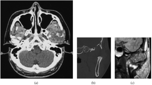 (a) Low-enhanced tumor around the condyle head in contrast-enhanced CT scan; (b) infratemporal fossa erosion and middle cranial invasion of tumor in coronal view of CT scan; (c) tumor expansion close to dura in enhanced MRI.
