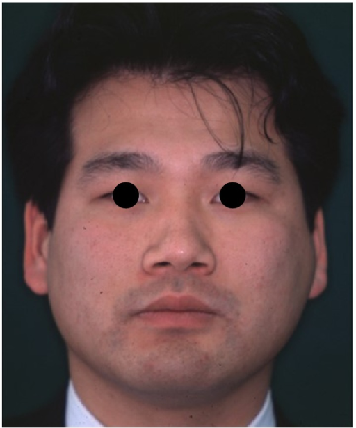 Frontal view of the patient one year after reconstructive surgery.