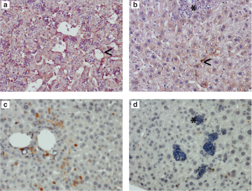 Histological staining for hematopoietic and endothelial markers in murine liver transplanted with endothelial cells expressing Epo. (a) Sections of paraplast embedded human fetal livers or (b) murine livers transplanted with endothelial cells transduced with an autoregulatory Epo expression vector were stained with a specific antihuman Lyve 1 antibody. The murine liver was harvested 3 months after transplantation in a period the mouse did not receive doxycycline water. In the human fetal liver (gestation 14–18 weeks) that is shown as a positive control, Lyve1-positive sinusoidal endothelium lines islands of hematopoietic cells and hepatoblasts (arrow). In the transplanted murine liver, clusters of hematopoietic cells can be seen showing extramedullary hematopoiesis (asterisk). Occasionally, Lyve 1 human liver endothelial cells were also detected, (arrow). (c) Liver tissue from mice with a humanized immune system that is shown as a positive control or (d) mice transplanted with endothelial cells transduced with an autoregulatory Epo expression vector were stained for human CD45. The mouse transplanted with endothelial cells was harvested 4 months after transplantation in a period the mouse received doxycycline water. Human CD45-positive hematopoietic cells were detected in mice with humanized immune systems but not in mice transplanted with endothelial cells.