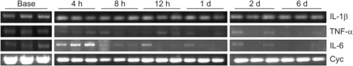 mRNA expression of TNF-α, IL-6, and IL-1β in rats undergoing L5 spinal nerve transection (SNT) after the administration of the cocktail of small interfering RNA (siRNA) targeting TNF-α, IL-6 and IL-1β (COCK group). See legend to Fig. 3 for further details. The mRNA levels for TNF-α, IL-6 and IL-1β at 4 h after SNT are not determined because of a technical error which occurred during the analysis process.