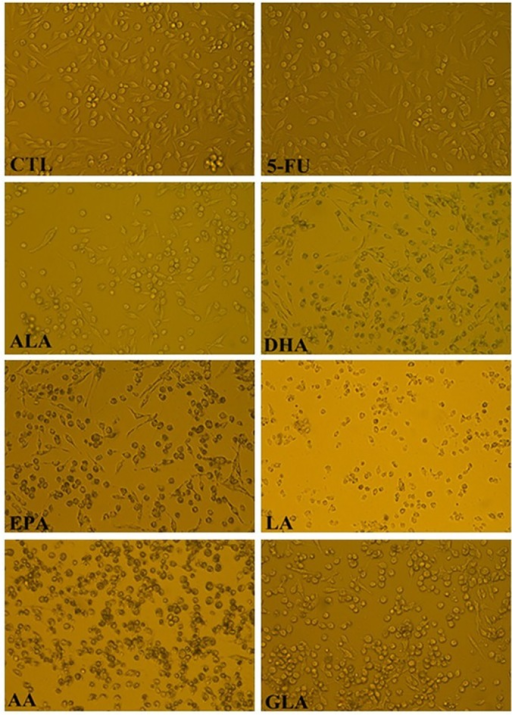 The cell morphological changes of LoVo cells were observed by inverted light microscopy (100×) after treated with ALA (150μM), EPA (150μM), DHA (150μM), LA (150μM), GLA (300μM), AA (150μM), 5-FU (10μM) for 48h.
