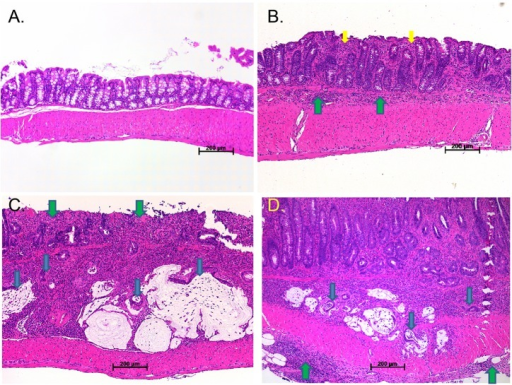 Photomicrographs of sulindac-diet-induced colon inflammation and cancer. (A) Hematoxylin and eosin (H&E)-stained sections of proximal colon from the P2 region of a control-fed Hif1αF/F mouse that appeared to be macroscopically normal. (B) Mild-active moderate chronic inflammation in a proximal lesion harvested from a sulindac-treated Hif1αΔIEC mouse. The inflammation is confined to the mucosa and submucosa. Yellow arrows indicate mucosal inflammation. Green arrows indicate submucosal inflammation. (C) Well-differentiated mucinous adenocarcinoma arising in an area of moderate-active moderate chronic inflammation with mucosal erosion in a Hif1αΔIEC mouse. Blue arrows indicate islands of adenocarcinoma. Green arrows indicate mucosal erosion. (D) Well-differentiated adenocarcinoma extending into the muscularis propria arising in an area of moderate-active severe chronic inflammation in a Hif1αF/F mouse. Note the inflammation extends into the adventia. Blue arrows indicate islands of adenocarcinoma. Green arrows indicate adventitial inflammation.