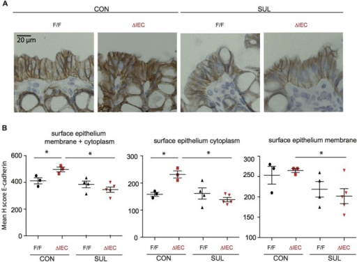 HIF1α deficiency predisposes the colon mucosa to a defect in E-cadherin protein expression in sulindac-treated mice. (A) Representative photomicrographs of E-cadherin staining in the P2 region of Hif1αΔIEC and Hif1αF/F mice treated with sulindac (Sul) or the control (Con) diet. (B) Quantification of the staining intensity of E-cadherin in the cytoplasm and membrane of colon epithelial cells using the H-score. Error bars indicate s.e.m. Star (*) indicates P<0.05. ΔIEC=Hif1αΔIEC; F/F=Hif1αF/F.