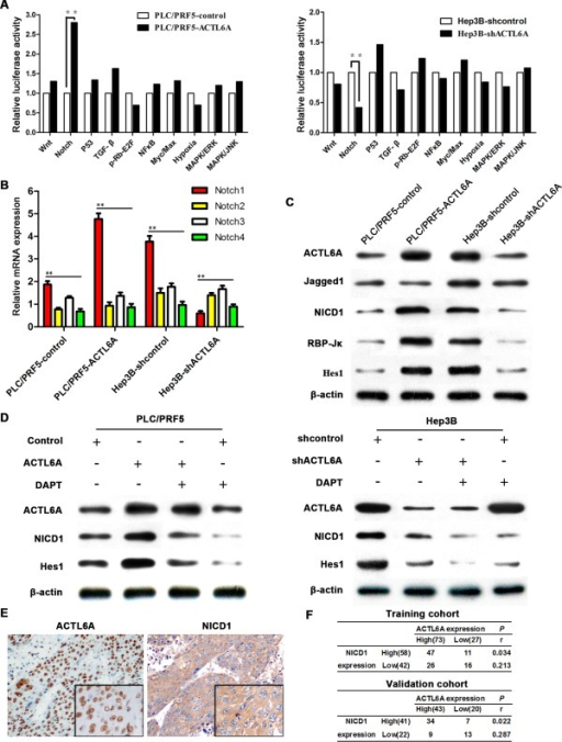 ACTL6A activates Notch signaling in HCC. (A) The 10‐Pathway Reporter Array showed the signaling change in ACTL6A‐interfered cells. (B) The four known Notch receptors' mRNA expression were detected by real‐time PCR. (C) Key members of Notch1 signaling expressions were detected by western blotting. (D) NICD1 and Hes1 expression in HCC cells after being treated by ACTL6A, shACTL6A, and/or DAPT for 72 hours were detected. (E) Representative IHC images of ACTL6A and NICD1 expression in HCC tissues; magnification: 100×, inset magnification: 400×. (F) Correlation of ACTL6A and NICD1 expression levels was analyzed by Spearman's rank correlation test. Abbreviations: ERK, extracelullar signal‐regulated kinase; JNK, c‐Jun N‐terminal kinase; MAPK, mitogen‐activated protein kinase; NF‐κB, nuclear factor kappa B; TGF‐β, transforming growth factor beta.