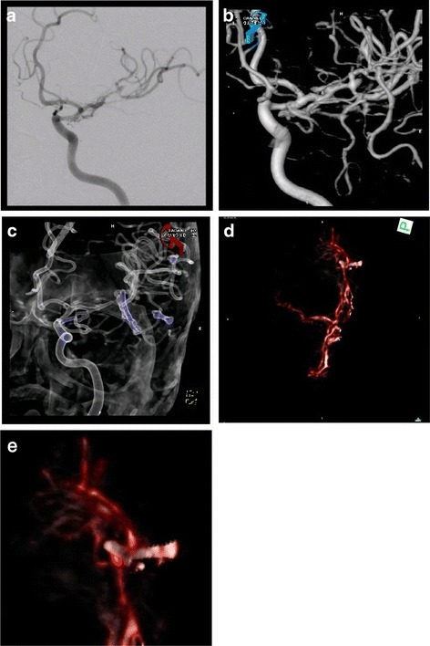 5 mm neck remnant after clipping of an MCA aneurysm in plain DSA images (a), 3D reconstructions (b and c) and intraoperative 3D fluoroscopy (d and e)