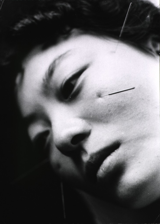 <p>Close-up of a woman's face with needles inserted at various points.</p>