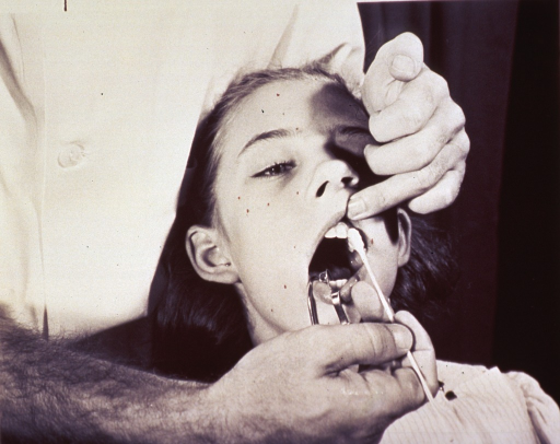 <p>A dentist is working on a girl's teeth.</p>