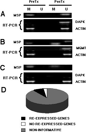 Representative cases correlating methylation and re-expression before and after hydralazine treatment. 2A is a patient treated with 75 mg/day that demethylated and re-expressed the DAPK gene. 2B corresponds to a patient receiving 150 mg/day who showed only the methylated band pre-treatment, but both bands after treatment, which correlated with re-expression of MGMT. 2C is a 50 mg/day patient which failed to demethylate the DAPK gene and therefore lacked expression. 2D represents the distribution of informative cases. From the 128 genes/cases, 116 were RT-PCR positive regardless of the methylation status, hence were not informative. In the remaining 12 cases, nine demethylated and re-expressed the gene.