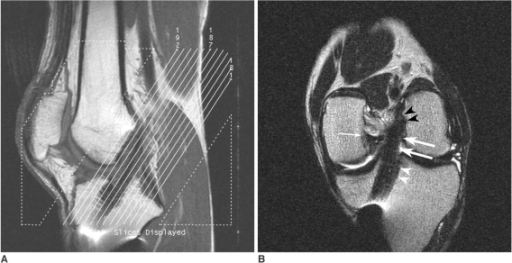 Oblique coronal MR images of anterior cruciate ligament grafts.A. Sagittal T1-weighted MR image is used to localize oblique coronal imaging planes parallel to femoral intercondylar roof.B. Oblique coronal T2-weighted images (TR/TE, 3500/96) show homogeneously dark, straight ligament, suggesting intact anterior cruciate ligament graft (arrows) along its entire length. Both femoral (black arrowheads) and tibial (white arrowheads) sides are clearly demonstrated. Cross section of posterior cruciate ligament (thin arrow) is also shown.
