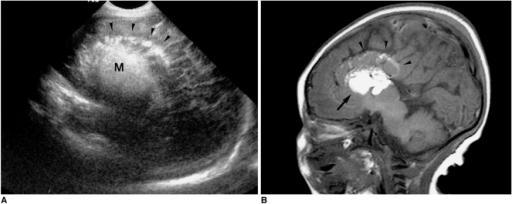 Tubulonodular-type pericallosal lipoma, as seen at postnatal follow-up imaging.A. Sagittal neurosonogram at the second day shows a hyperechoic midline mass (M), with scattered echogenic spots (arrowheads) in the cingulate sulcus.B. T1-weighted sagittal MR image demonstrates a high-intensity bulky mass in the midline of the anterior callosal area (arrow), with scattered fat globules in the cingulate sulcus (arrowheads). The corpus callosum is invisible. The cerebral gyri extend in a radial pattern from the lateral ventricles, without the normal curve of the cingulate gyrus.