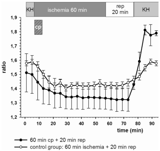 Calcium homoeostasis was intact in the cardioplegia group. In the control group (ischemia without cardioplegia) final calcium ratio values were significantly (p < 0.05) elevated. Ratio values are plotted as mean ± SEM of n = 5 experiments. Cp: cardioplegia for 5 min.