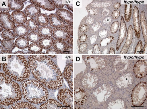 Cbx3hypo/hypo testes showed a dramatic loss in the number of germ cells. (a,b) Typical germ cell nuclear antigen (GCNA) staining of germ cells within wild-type testes. (c,d) In Cbx3hypo/hypo testes, there was a dramatic reduction in the numbers of GCNA-positive germ cells. Some tubules contained no GCNA-positive germ cells and presented a Sertolin cells-only phenotype (asterisk). Bar = 100 μm.