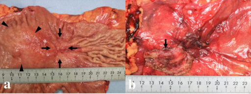 Macroscopic examination of the specimens. a. Upon macroscopic examination, the specimens showed an elevated and superficial depressed-type (IIa+IIc type) gastric cancer (arrow) and an elevated lesion similar to a submucosal tumor (arrow head). b. The abdominal wall (arrow) was resected together with the stomach.