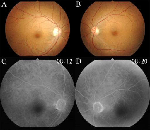 Fundus photographs (A, B) and fluorescein angiograms (C, D) of this case showing no abnormal findings.