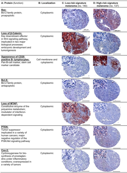 Immunohistochemically stained TMA specimens illustrating the Seven-Marker Signature for a patient with a high-risk and another patient with a low-risk melanoma.The low-risk melanoma (Column C) showed a strong cytoplasmic staining for β-Catenin and MTAP, respectively. Immunoreactivity of these two protective markers was not found in the high-risk melanoma (Column D). In contrast, the high-risk melanoma demonstrated a moderate to strong cytoplasmic staining for Bax, Bcl-X, PTEN, COX-2, and infiltration with CD20 positive B-lymphocytes.