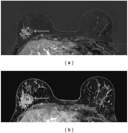 Contrast-enhanced (subtraction) MR images (a) and contrast-enhanced T1-weighted MR images (b) show a large, lobulated heterogeneously enhancing mass with irregular borders in the lower lateral quadrant of the right breast (arrows).