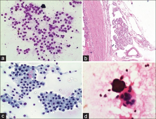 (a) Follicular neoplasm: Cellular smear with cells arranged in microfollicular pattern with anisokaryosis (MGG, ×200); (b) Follicular carcinoma: Tissue section showing vascular invasion (H and E, ×100); (c) Hurthle cell neoplasm: Cellular smear with sheets of oxyphilic cells having abundant granular cytoplasm and eccentrically placed nucleus (Pap, ×200); (d) Papillary carcinoma: Smear showing tumor cells with chewing gum colloid and psamomma body (H and E, ×200)