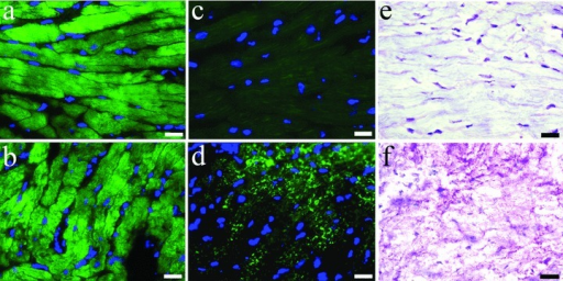 Detection of αCA (A, B), αSKA (C, D) and periodic acid Schiff (PAS) staining (E, F) in frozen sections from sham left rabbit ventricular myocardium (A, C, E) and left ventricular tissue after induction of 2 weeks aortic insuffiency and subsequently 16 weeks of banding (B, D, F). Re-expression of αSKA and presence of glycogen accumulation in the same areas of pressure and volume overloaded myocardium is evident. Scale bars represent 20 μm.