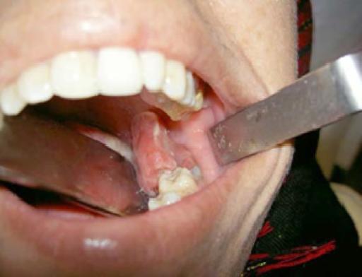 unusual chronic hyperplastic pulpitis in unique large s