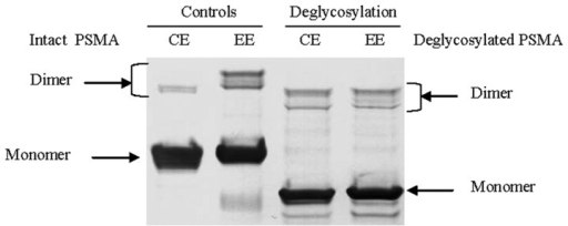 Deglycosylation analysis of cellular and exosomal PSMAs. The cell extract (CE) and exosome extract (EE) proteins were deglycosylated with PNGase F and analyzed by western blotting. Deglycosylated PSMAs exhibit the same size of molecular weight, implicating that high-content glycosylation contributes to the increased molecular weight of exosomal PSMA, compared to cellular PSMA.