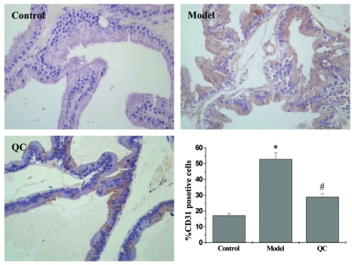 Inhibition effect of QC on the intraprostatic MVD in BPH rats. CD31 expression was observed using IHC staining (magnification, ×400) and quantification of the IHC assay was represented as the percentage of positively-stained cells. Data are expressed as the mean ± standard deviation (error bars) from 10 individual rats in each group. *P<0.01, vs. control; #P<0.01, vs. model. QC, qianliening capsule; BPH, benign prostatic hyperplasia; IHC, immunohistochemistry; MVD, microvessel density.