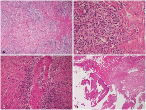Histopathological findings (hematoxylin and eosin-stain). A: Microscopic findings of the mass and skull demonstrating florid inflammatory cell infiltrates and storiform fibrosis (×40). B: The inflammatory cells, which consist of plasma cells, lymphocyte and some neutrophils (×400). C: Nearly obliterated vein by inflammatory cell aggregation (×200). D: The skull revealing lymphoplasmacytic infiltration and fibrosis (×40).