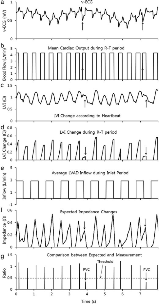 Signal processing for the detection of abnormal heart beats (a) the v-ECG recorded from the in-vivo experiment, (b) the R-T period determined by the v-ECG in Figures 2 a, b, (c) the measured changes in LVI, (d) the magnitude of change in LVI during the R-T period, as measured in Figure 2 c, (e) the period during which blood flowed into the VAD, (f) the predicted increase in impedance during mean blood flow and inflow from the heart when the R-T period and increase in volume appeared to predict high impedance and (g) comparison of the predicted impedance in Figure 3 f and the actual LVI increase in Figure 3 d.
