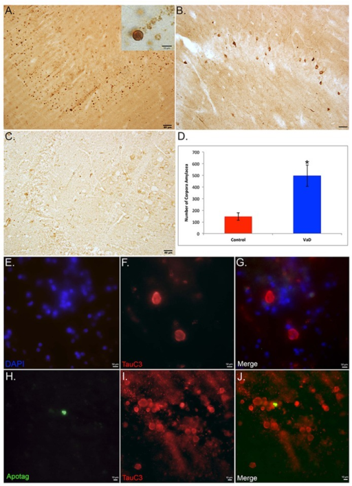 Identification of TauC3-labeled structures as apparent corpora amylacea in VaD.(A): Bright-field staining utilizing the TauC3 antibody in the dentate gyrus of a representative VaD showing the presence of numerous round labeled structures that were ring-like in appearance (inset). (B): Representative bright-field staining utilizing HT7, an anti-body to full-length Tau did not label these round structures although numerous neurons were labeled. (C): Representative labeling of the TauC3 in an aged-matched control case indicating a relative paucity of labeling. Scale bars in Panels A-C represent 50 μm. (D): Quantitative analysis of the number of round structures in the hippocampi indicated a significant difference between VaD cases (n = 7, ±S.D.) and aged-matched controls (n = 4, ±S.D.), *p = .008. (E-G): Immunofluorescence double labeling in a representative VaD case utilizing TauC3 (red) and the nuclear stain, DAPI (blue) indicated that the round circular structures labeled by TauC3 are not nuclei (merge, G). (H-J): Immunofluorescence double labeling in a representative VaD case utilizing TauC3 (red) and TUNEL to label apoptotic cells (green) indicated that the round circular structures labeled by TauC3 are not apoptotic cells by in large (merge, J). Scale bars in Panels E-J represent 10 μm.