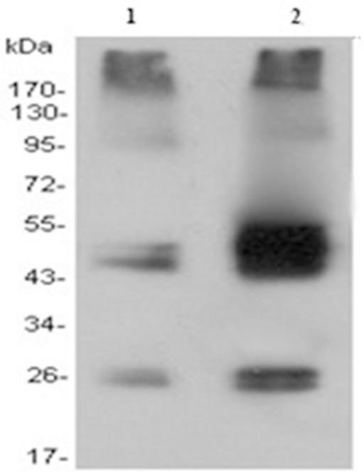 Western blot analysis of membrane protein extracts isolated from instantaneous transfected and nontransfected HEK293 cells.Equal amounts of proteins were loaded for each of the strains, separated by gel electrophoresis, and Western blotted with anti-His monoclonal antibodies. Membrane protein extracts of nontransfected (lane 1) and instantaneous transfected (lane 2) HEK293 cells, (lane M) molecular weight standards. The receptor produced in HEK293 cells appeared in cellulose acetate membrane as diffuse bands with an apparent molecular mass between 43 and 55 kDa.