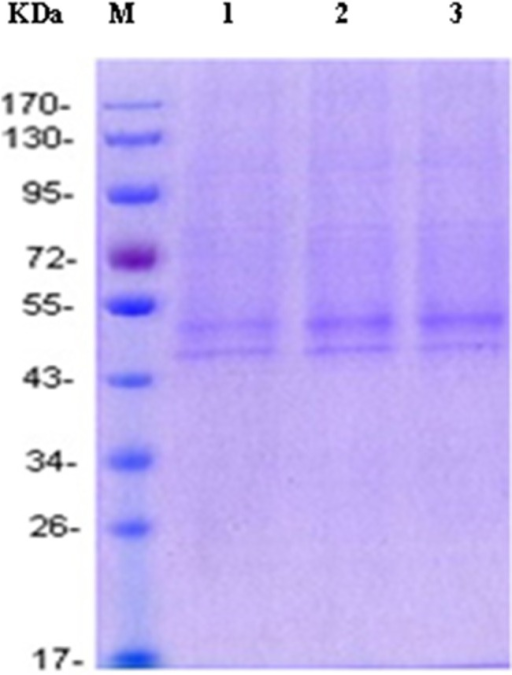 SDS-PAGE of the purified β2-AR protein from cells transfected with the plasmid of pTriEx-1.1 Hygro-β2-AR.(Lanes 1-3) 10 μL of Ni-NTA-purified protein, (lane M) molecular weight standards. The receptor expressed in HEK293 was glycosylated and migrated as 2 bands, with the minor band showing an apparent molecular mass of around 47 kDa and the major band around 52 kDa.